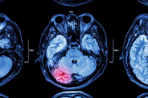A brain scan highlighting an injury in red.