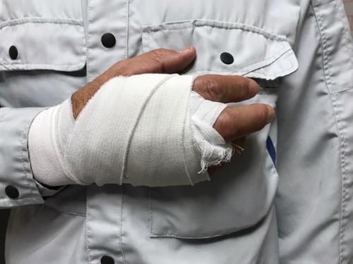 A man with his wrist bandaged after spraining it in a fall.