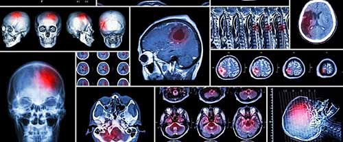 Brain Scan. If you've been injured in an Uber accident, contact Cellino Law for a free case evaluation today.