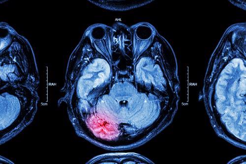 An MRI scan indicating an injury to a brain.