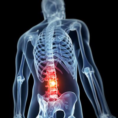 An x-ray of a back with an injury highlighted in red.