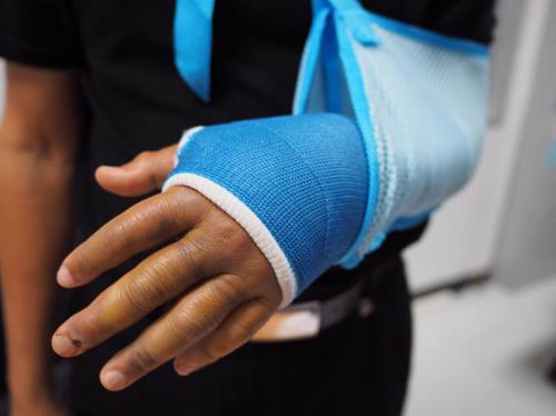 A man with an arm in a cast after breaking it in a construction accident.