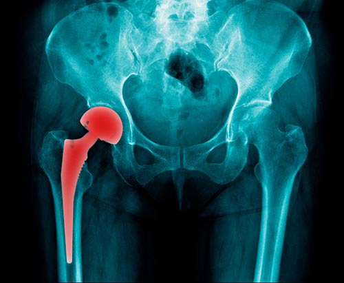 This image shows an x-ray of a hip implant.